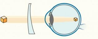 Illustration Astigmatismus-Korrektur durch torisches Glas