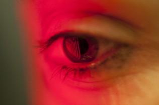 Auge beim Augentest
