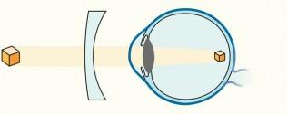 Illustration Korrektur der Kurzsichtigkeit durch ein konkaves Minus-Glas